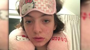 lorde acne selfie